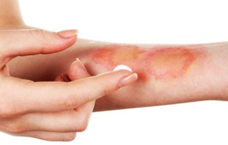 Co przyspiesza gojenie ran?